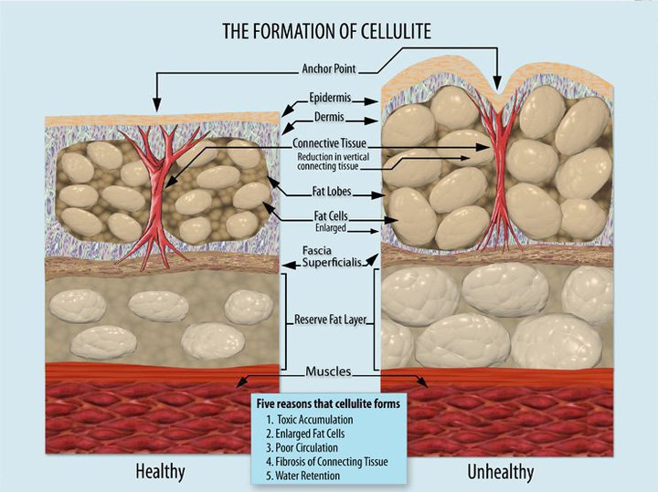Cellulite Formation cellulite tratment healthy dp