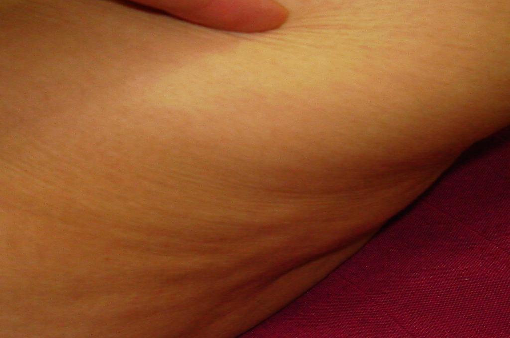 cellulite_treatment_healthy_dp